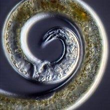 fonálféreg ivóvízben